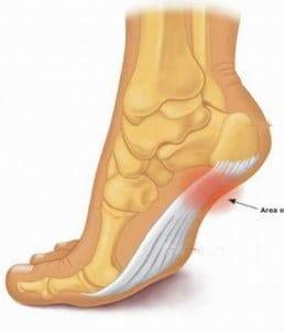 Điều trị gai xương gót chân