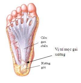 Nguyên nhân và triệu chứng gây gai xương gót chân