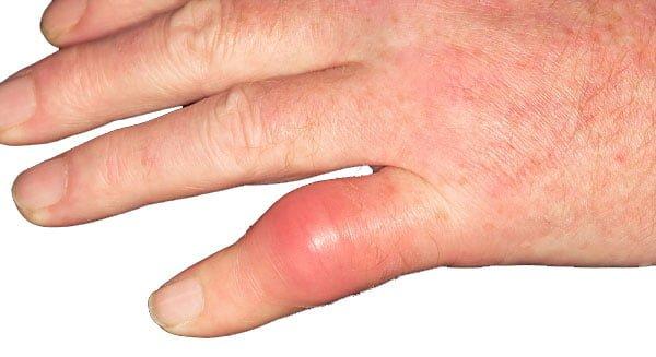 Triệu chứng của bệnh gút