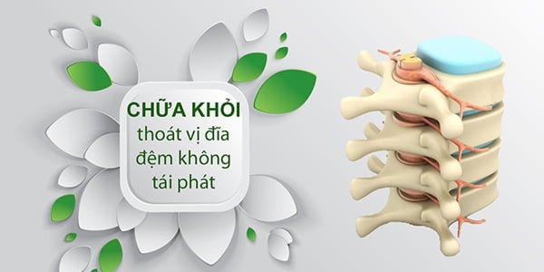 chua benh thoat vi